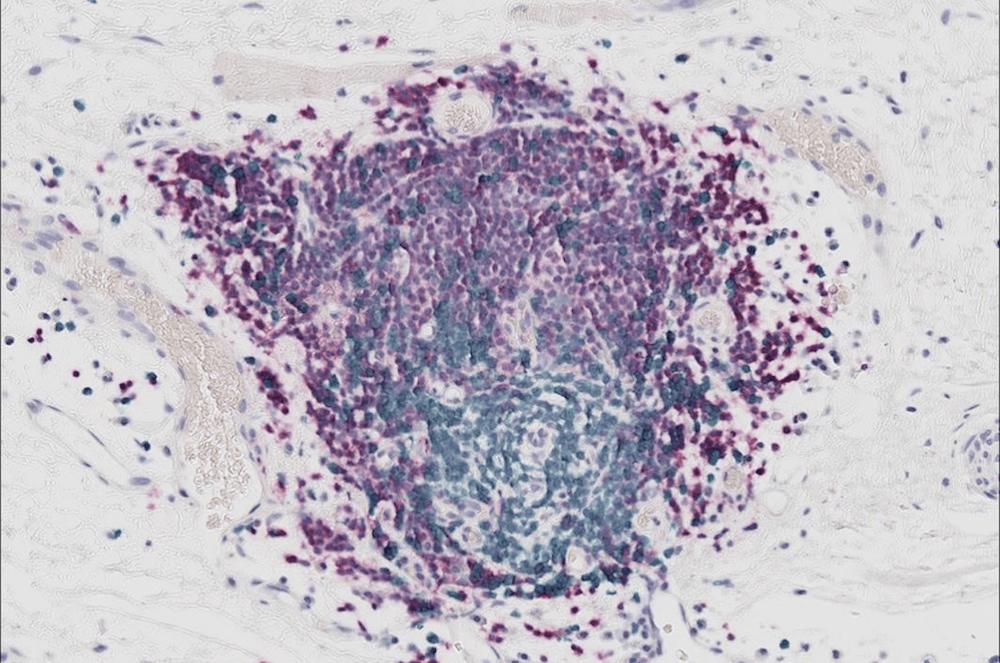 Lymphocytes B : de nouveaux alliés pour le traitement des sarcomes par immunothérapie ?