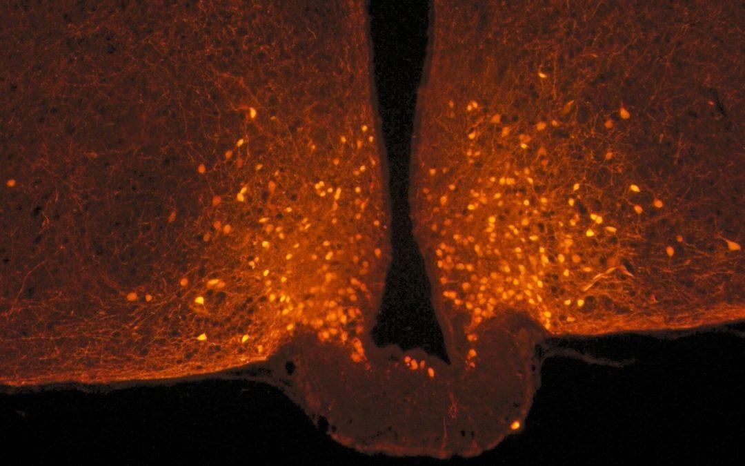 Des cellules du cerveau qui changent de forme et coupent la faim