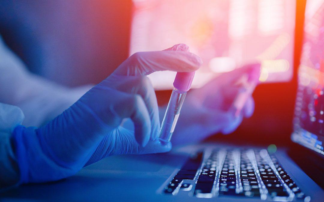 Covid-19 – Quatre projets de recherche appliquée financés en urgence