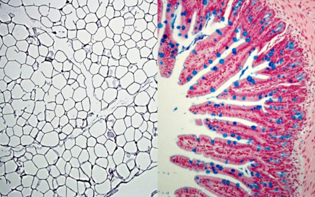 Obésité : des cellules immunitaires associées aux muqueuses intestinales induisent inflammation et dysbiose