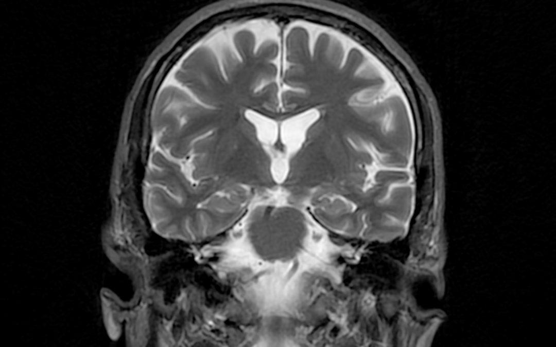 Maladie d'Alzheimer: la cosmochimie au service du cerveau