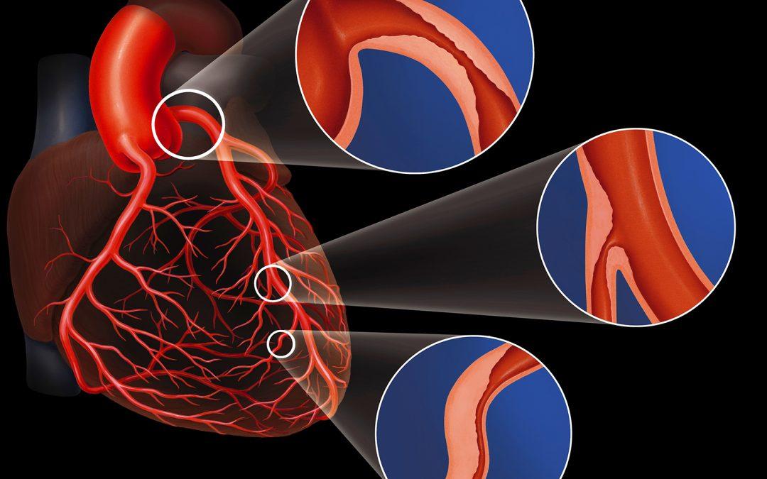 Premiers résultats d'un traitement novateur non invasif de la sténose valvulaire aortique