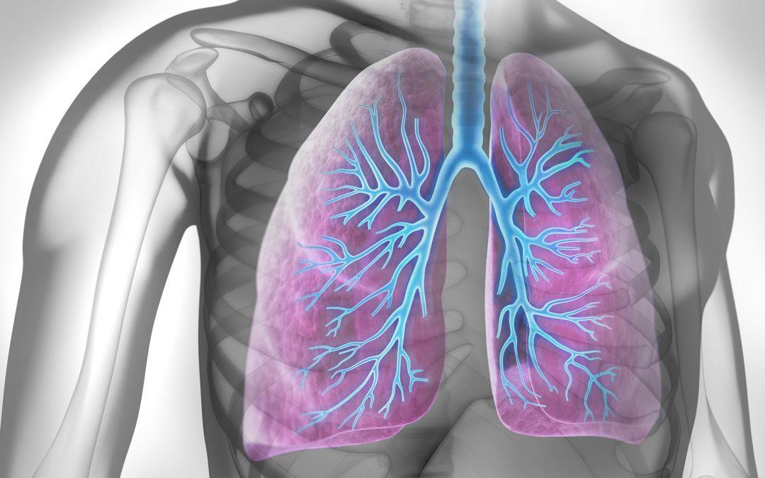 Effets précoces de l'association elexacaftor-tezacaftor-ivacaftor chez les patients atteints de mucoviscidose et de maladie pulmonaire sévère
