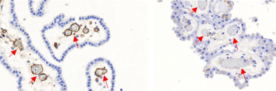 Une avancée majeure dans la compréhension de la prédisposition du nouveau-né aux méningites à streptocoque du groupe B