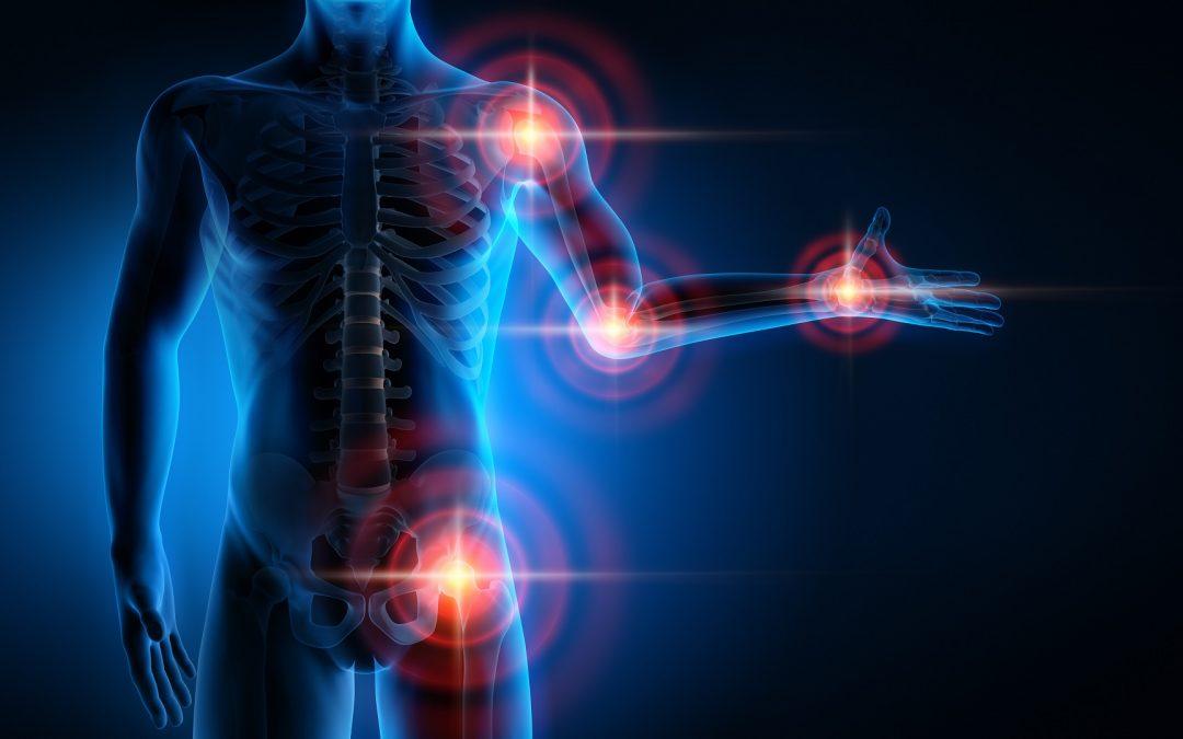 La Faculté de Santé crée l'Institut des Maladies OstéoArticulaires