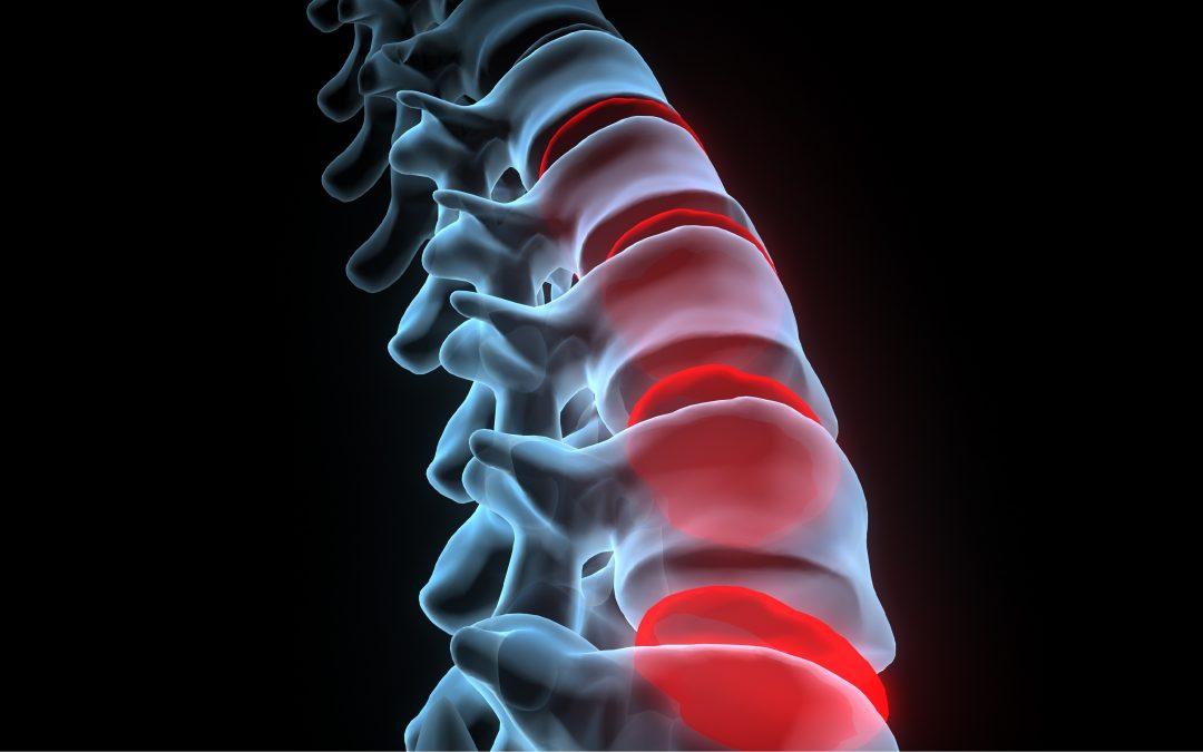 Étude de l'effet des manipulations ostéopathiques chez les patients souffrant de lombalgie