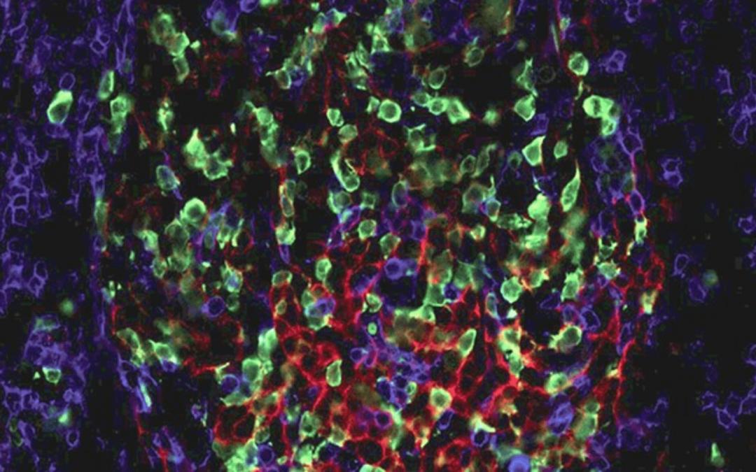 La persistance de cellules mémoires B résistantes au rituximab contribue aux rechutes des patients adultes atteints de thrombopénie immunologique