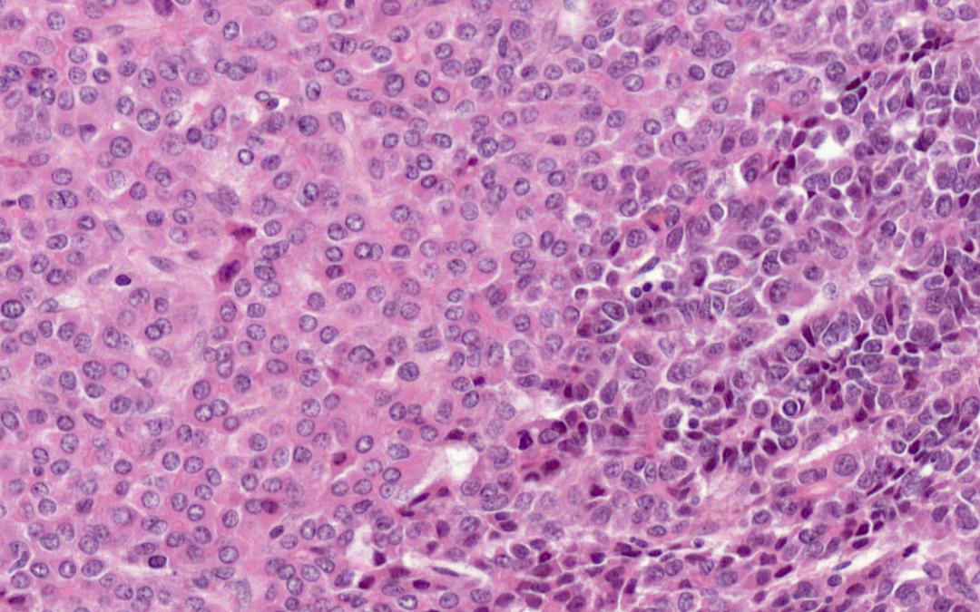 Cancers du foie de l'enfant : plasticité tumorale et résistance à la chimiothérapie